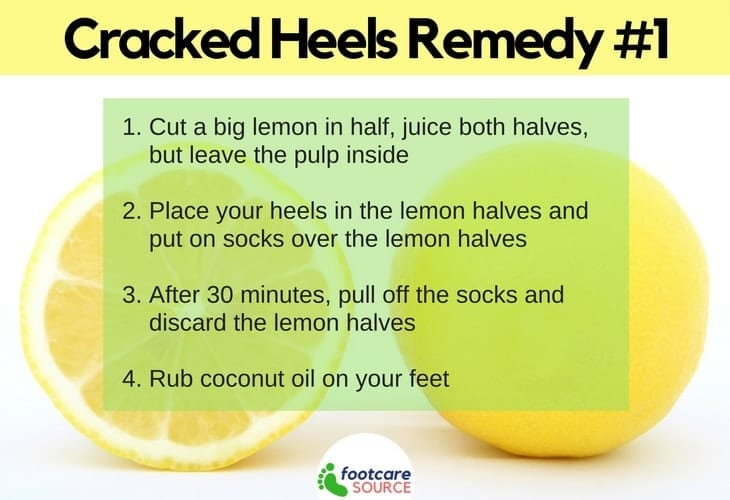 Home Remedies for Dry Cracked Feet